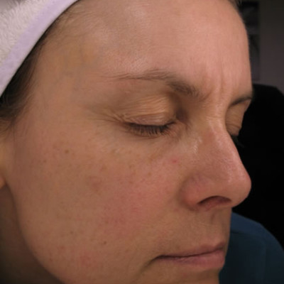 Collagen Stimulation Therapy After